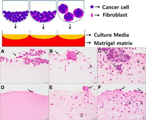 Tumor invasion assays using a 3D organotypic cell culture